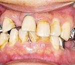 歯周病・細菌検査 - アットホーム彦根歯科